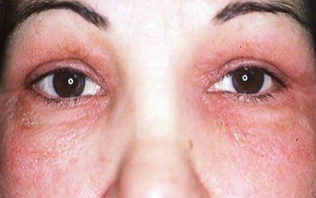 Allergies oculaires